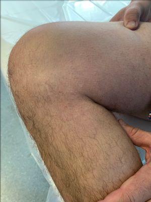 Nemocnica AGEL Košice-Šaca má ako jediná licenciu na implantáciu umelej náhrady menisku: Rozhovor sprvým pacientom
